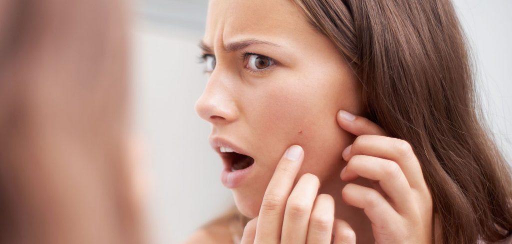 Astuces pour combattre l'acné et les éruptions cutanées